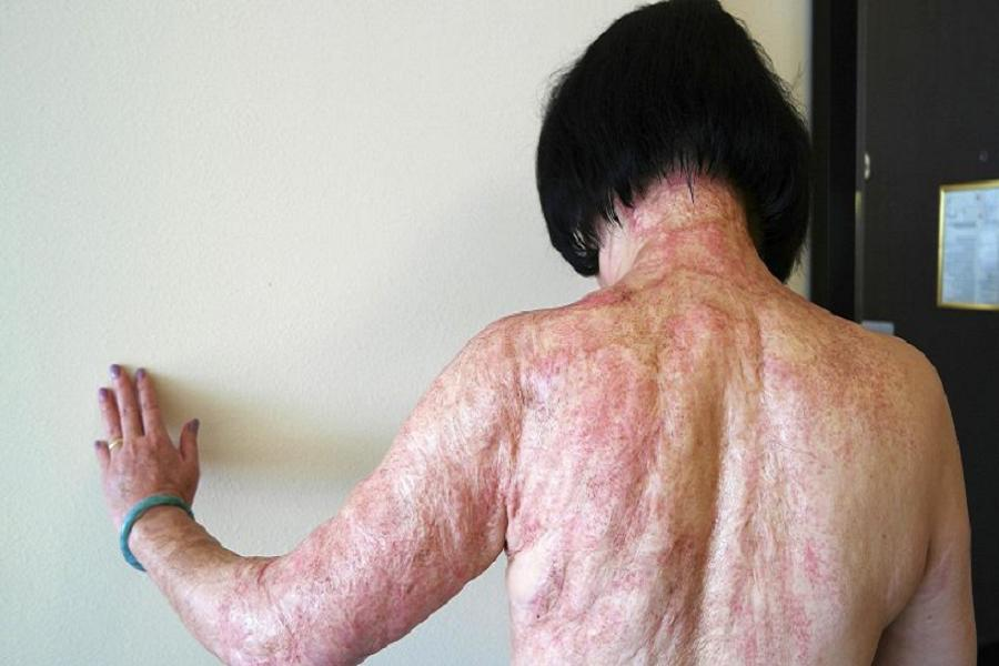 Napalm Girl Burn Scars