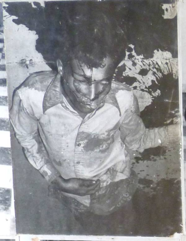 Tuol Sleng Bleeding Prisoner