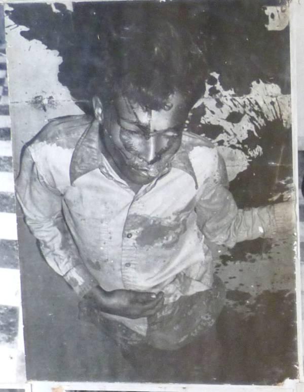 Tuol Sleng Bleeding Prisoner