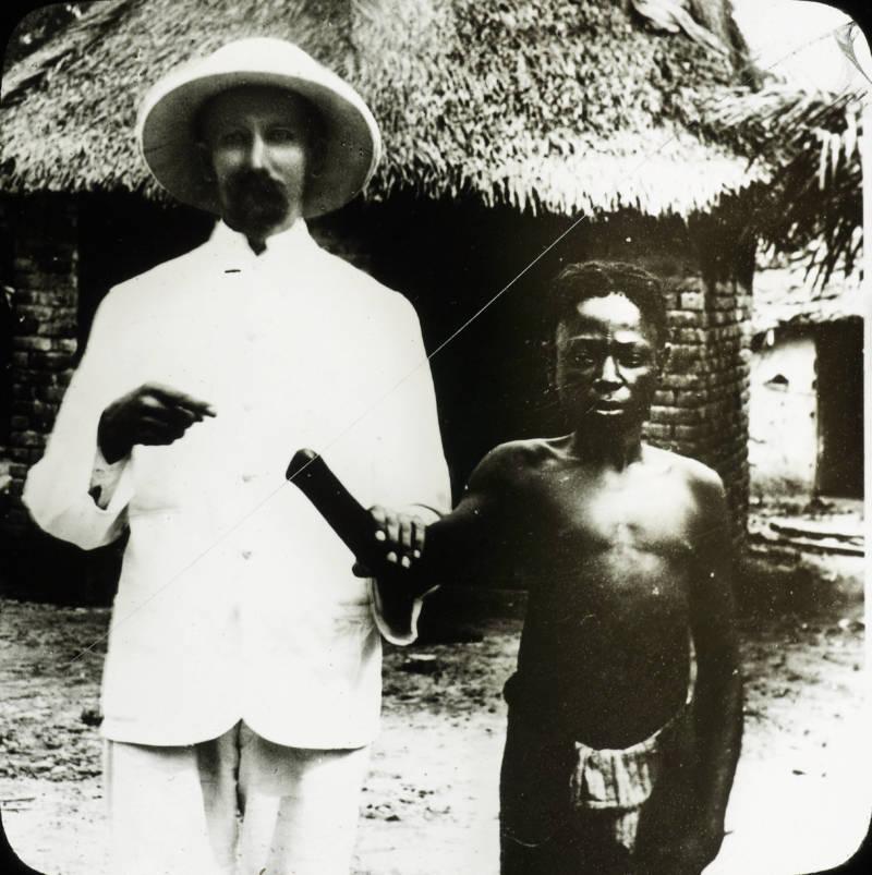 Congo Victim With No Hand