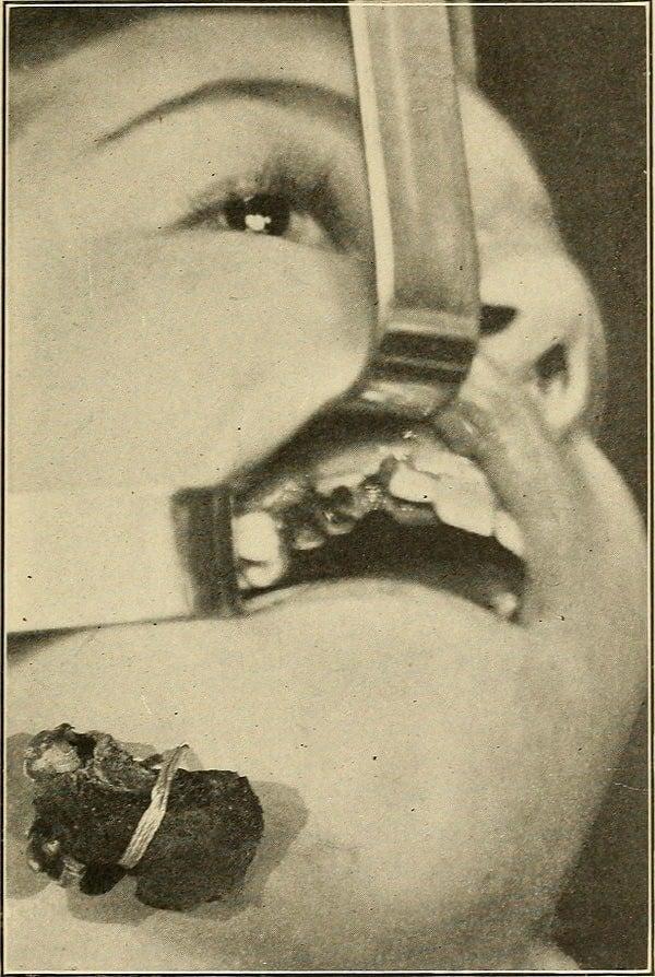 Dentist History Surgery