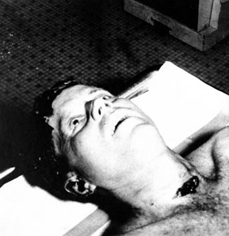 Kennedy Corpse