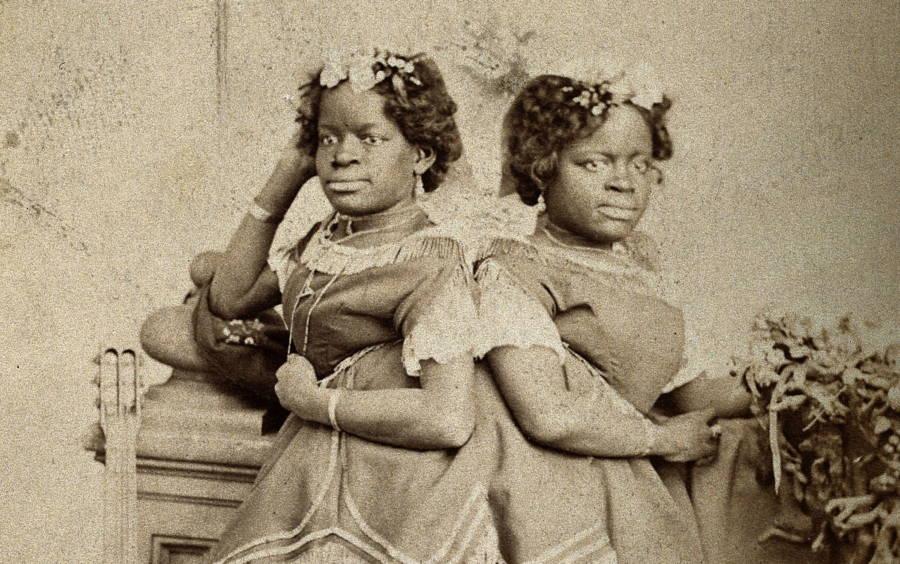 Mccoy Twins Posing