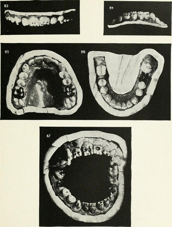 Mouth Diseases Dentistry