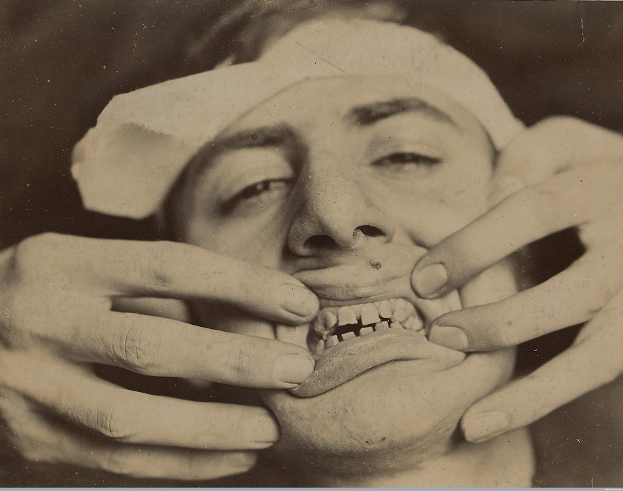 Pictures From The Early History Of Dentistry