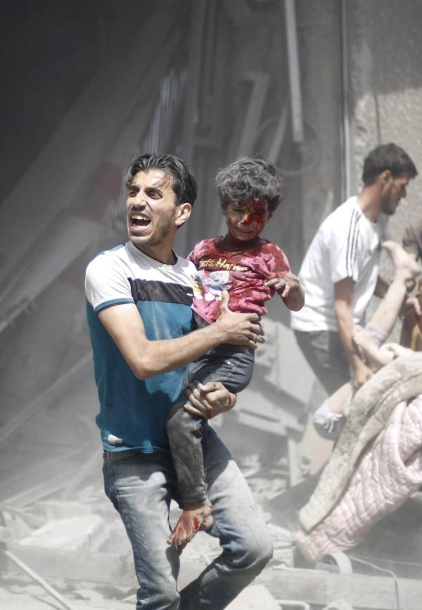 Syrian Man With Wounded Child