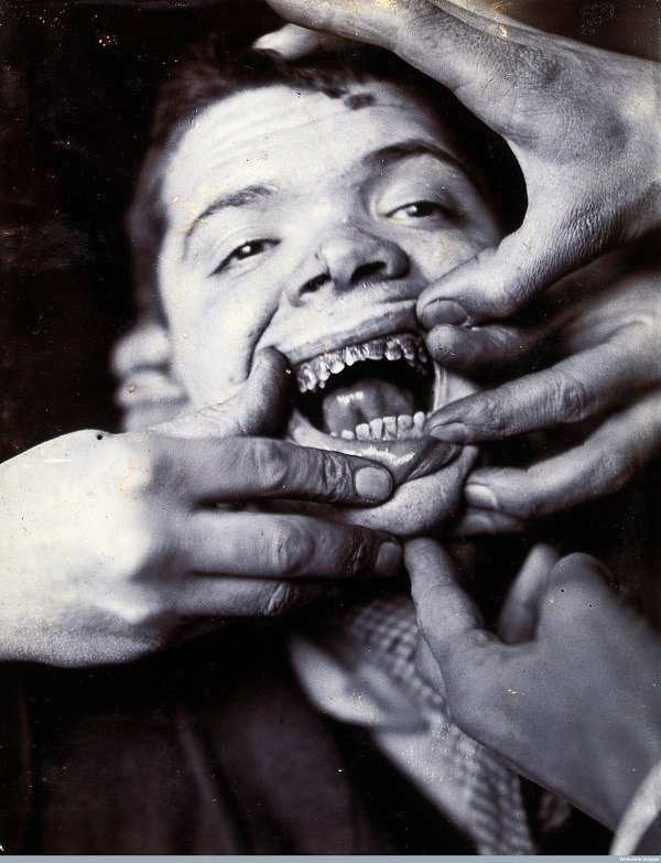 Terrifying Early Dentistry Pictures