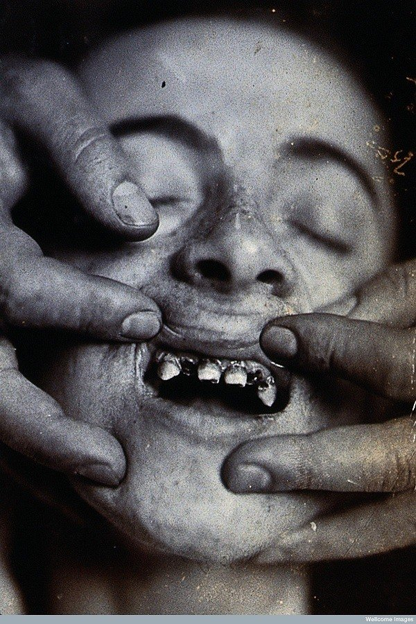 Tooth Disease Early Dentistry