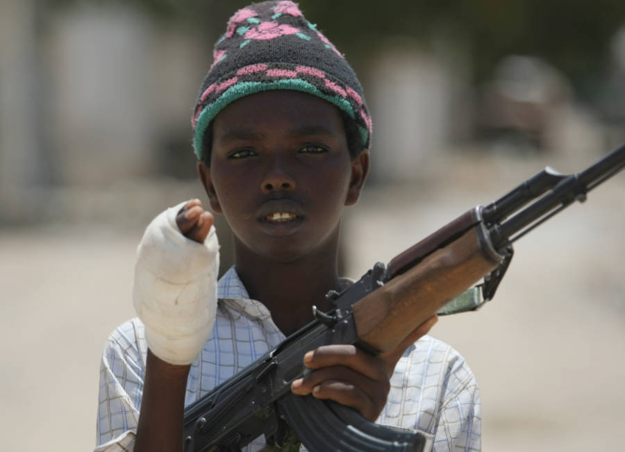 Wounded Child Soldier From Al Shabab