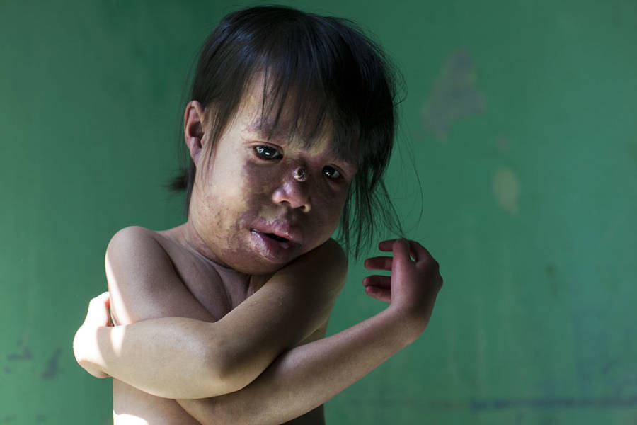 Agent Orange Skin Disorder