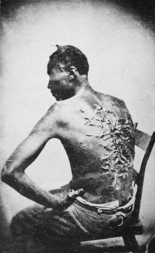 Back scars from slavery