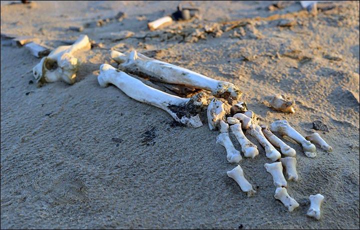 Extremity Bones
