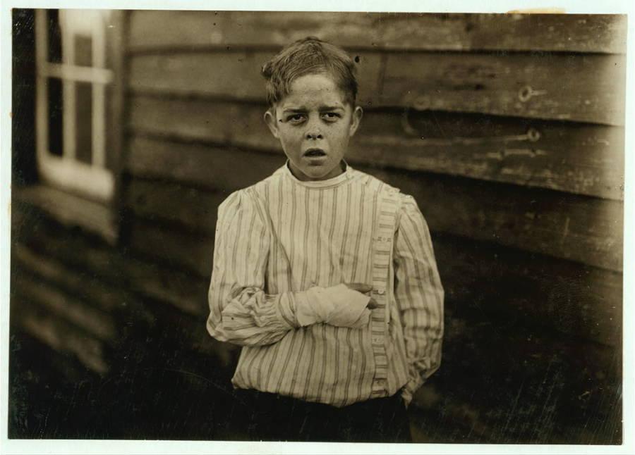 Injured Child Mill Worker