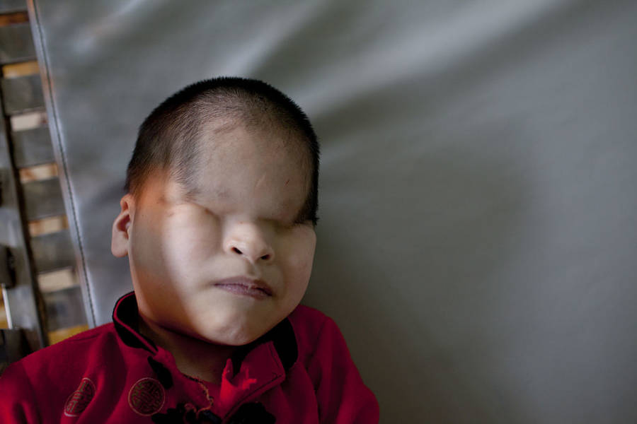 Young Boy Without Eyes