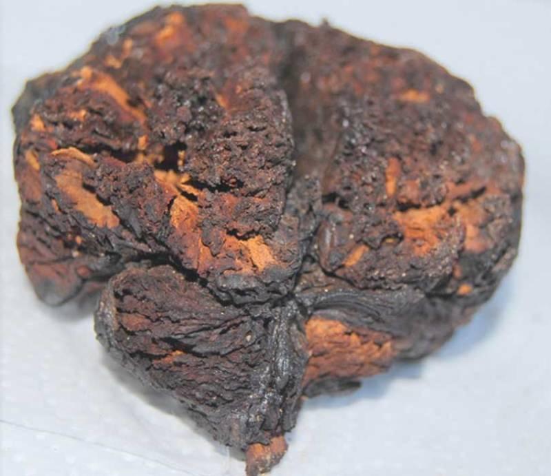 Bronze Age Brain