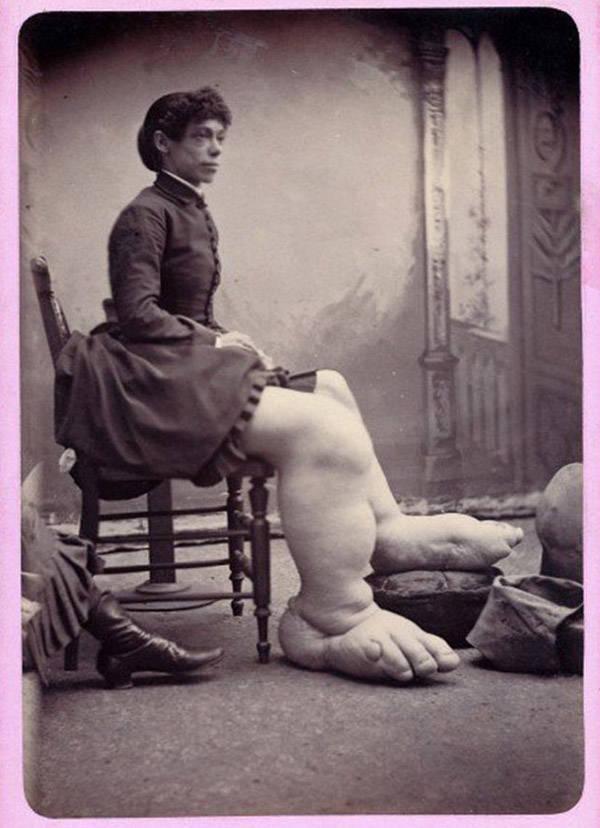 Fannie Mills