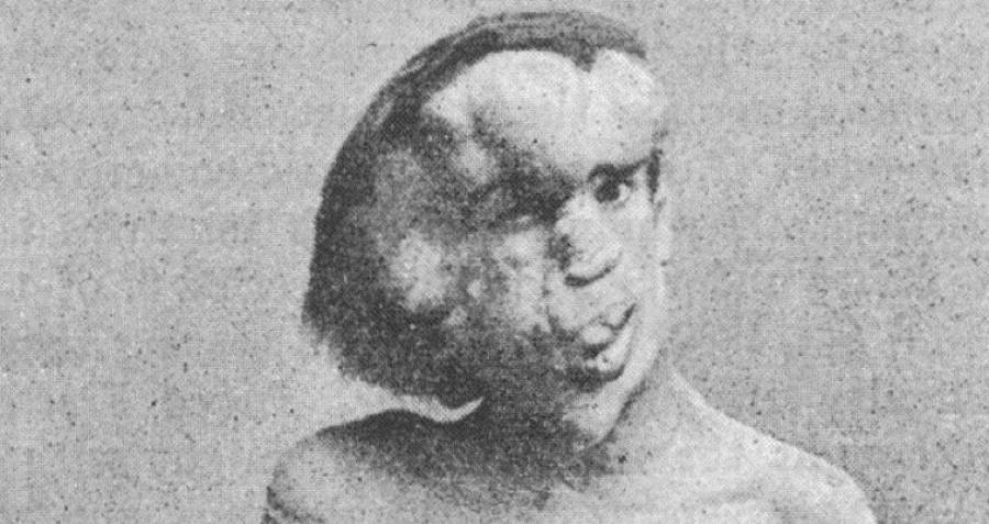 "Joseph Merrick: Meet The Man Behind ""The Elephant Man"""