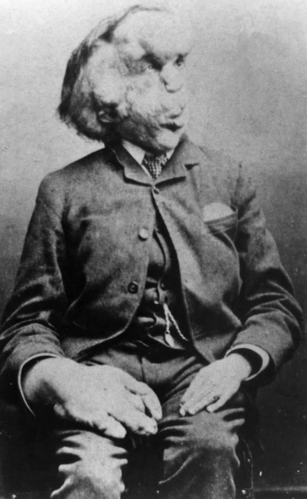 Joseph Merrick Portrait