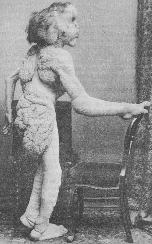 Joseph Merrick full body naked