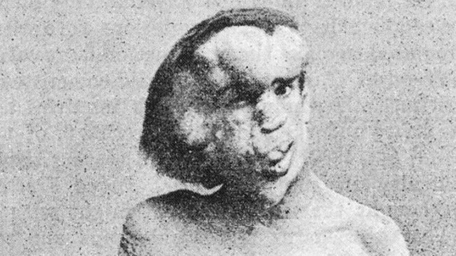 Joseph Merrick The Elephant Man