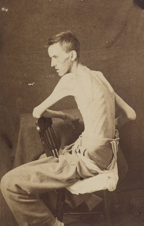 Civil war soldier in the hospital