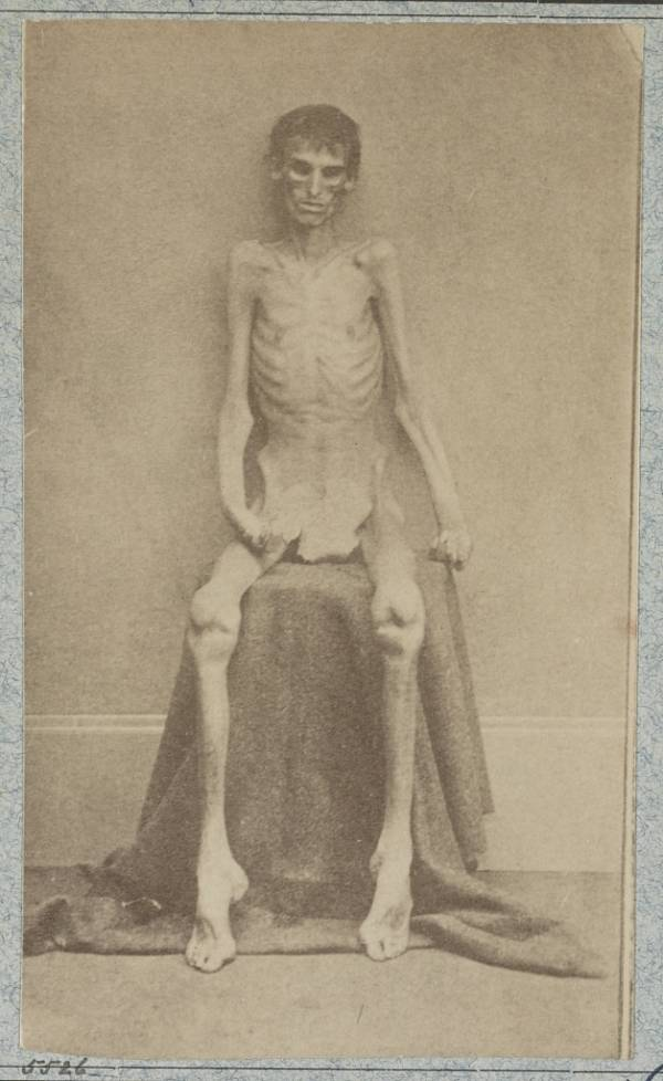 Starved Union soldier