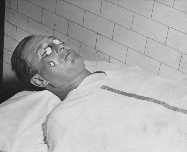 Bugsy Siegel Corpse