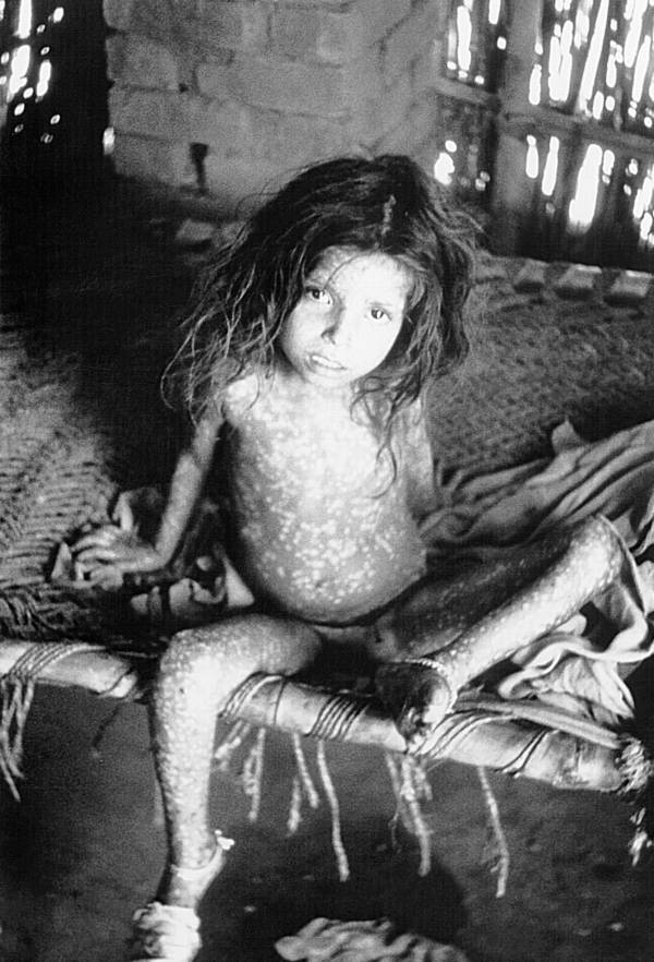 Bengali child with Smallpox