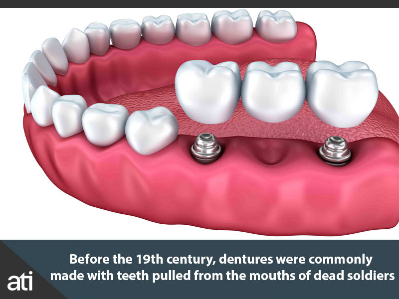 Dentures In The 18th Century
