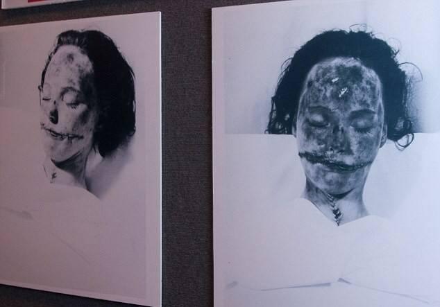 Elizabeth Short Autopsy