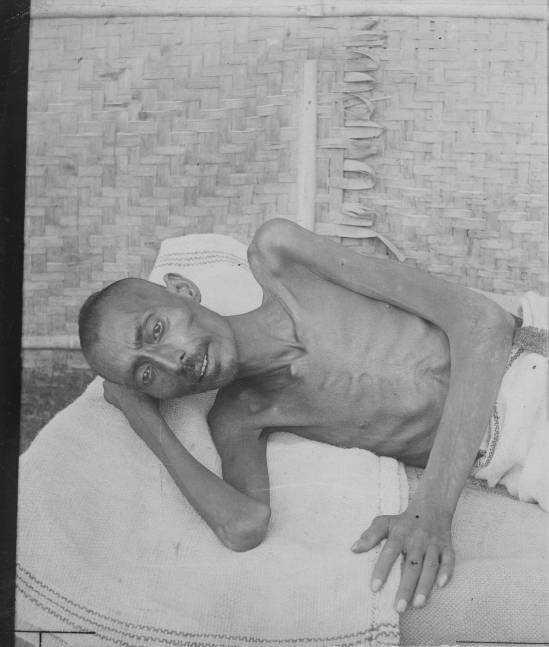 Emaciated man during Bengali Famine