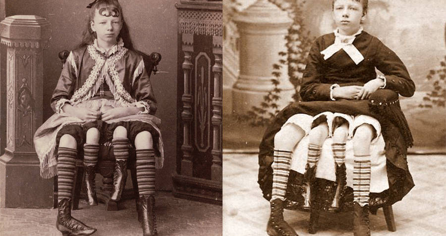 Myrtle Corbin four legged woman