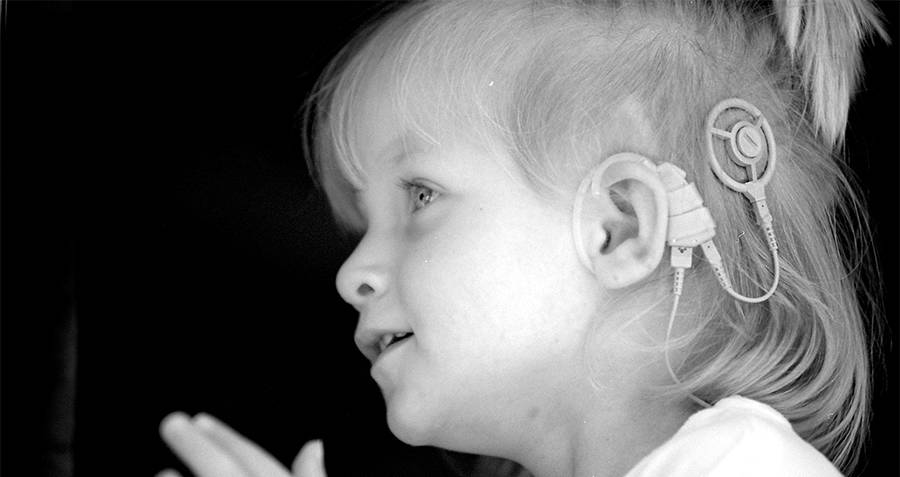 Child with a cochlear implant