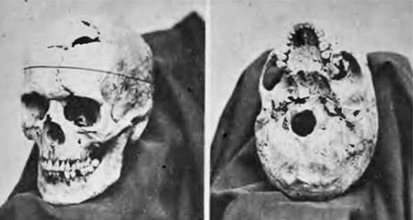 Phineas Gage How A Man Survived A Rod Going Through His Head
