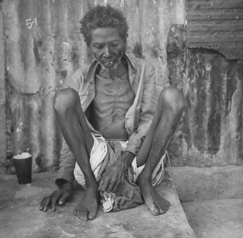 Old Bengali starving man