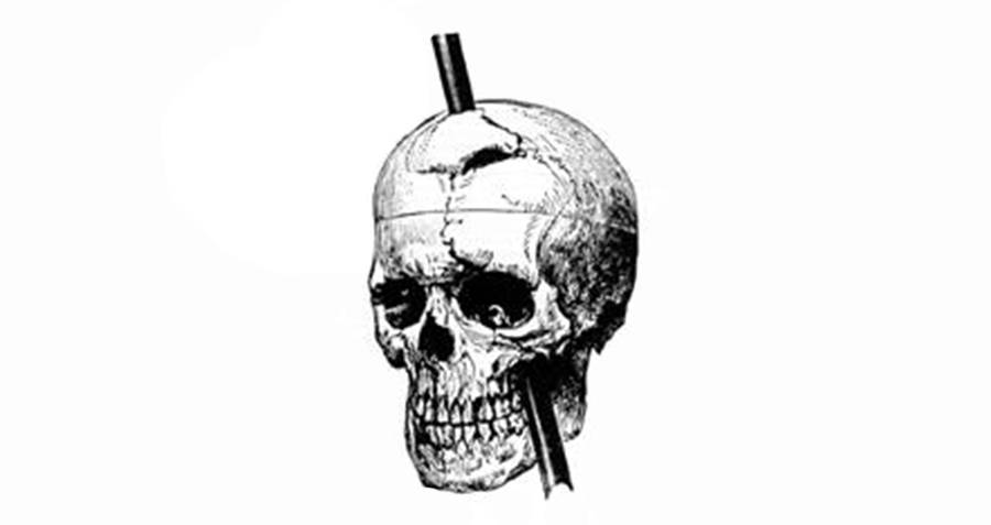 Phineas Gage Illustration