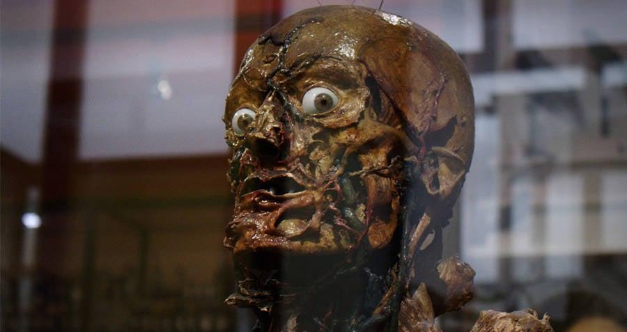 Musee Fragonard flayed man