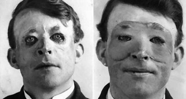 5 Creepy Remedies From The Nightmarish Annals Of Medical ...  Walter Yeo Skin Graft