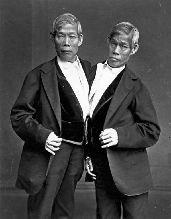 Chang Eng Bunker Siamese Twins