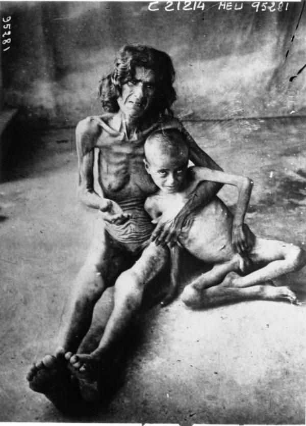 Starving Mother And Child