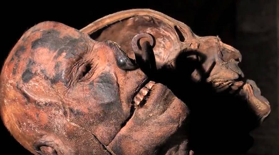 Peter Kurten's Head