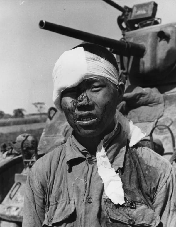 Wounded Nationalist