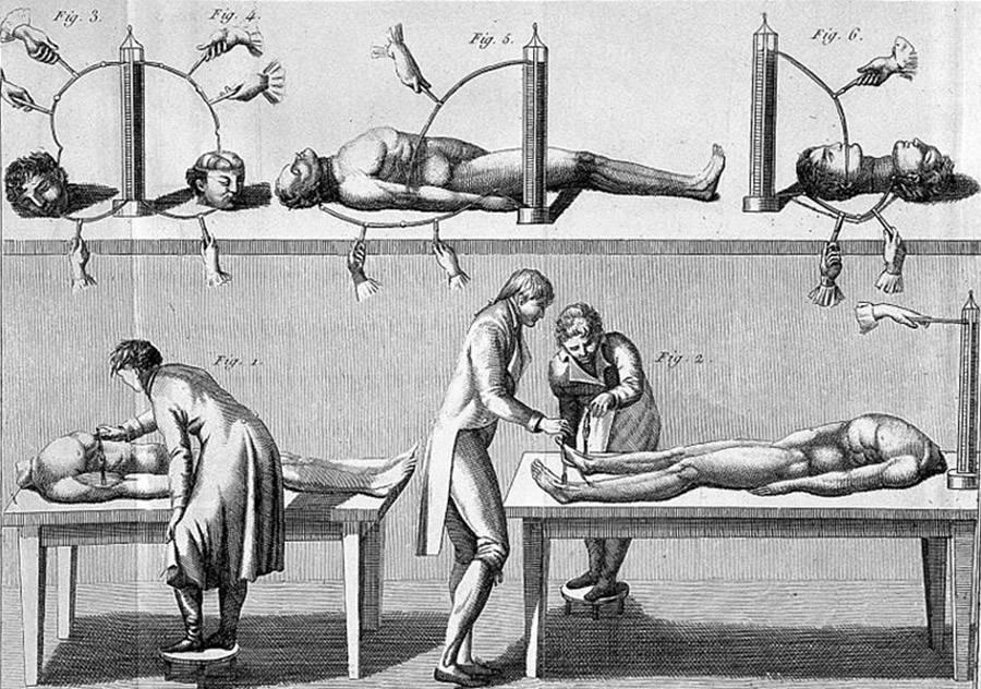 Drawing of Giovanni Aldini's experiments.