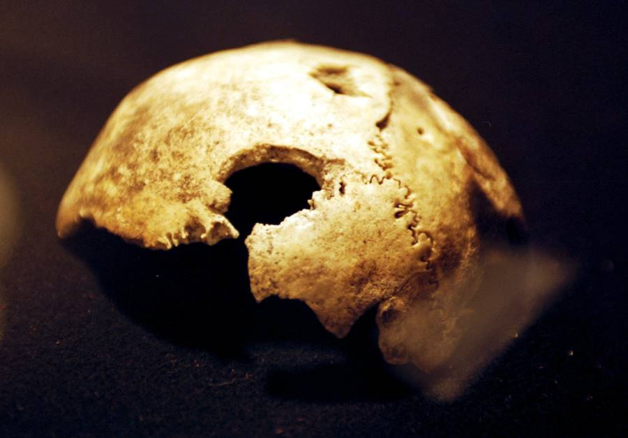 Alleged Skull Of Hitler