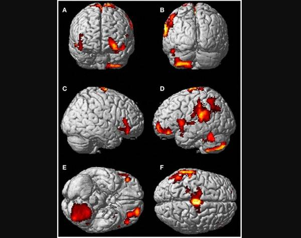 Out-of-body experience brain MRI