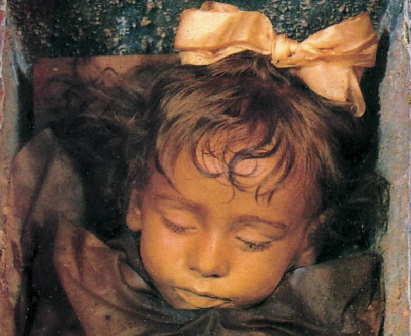 The Mummy Of Rosalia Lombardo