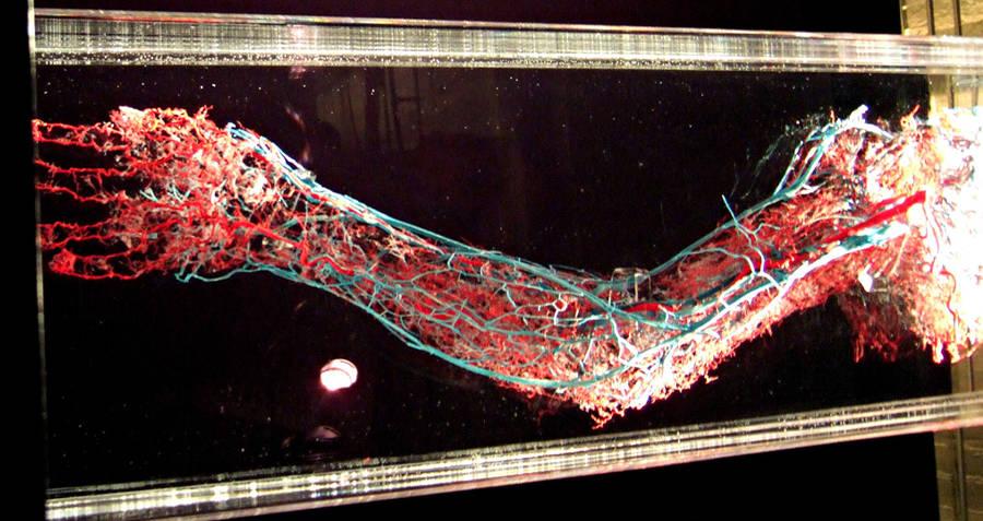 Circulatory System Arm