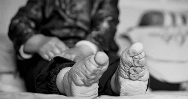 Inside The Disturbing Practice Of Chinese Foot Binding