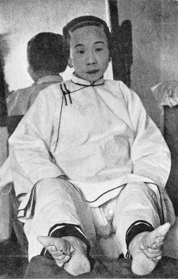 Woman With Foot Binding