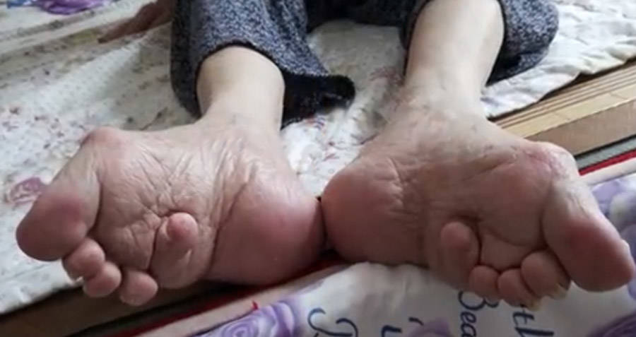 Elderly Chinese Woman With Bound Feet